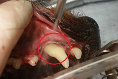 歯周病の治療について