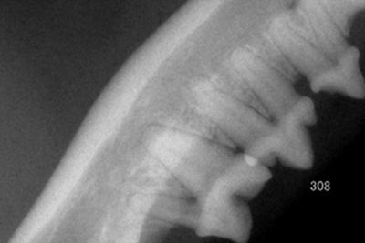 歯の吸収病巣の治療